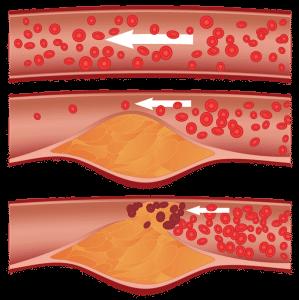 Schritte_arteriosklerose