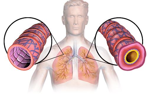 asthma bronchiale vergleich
